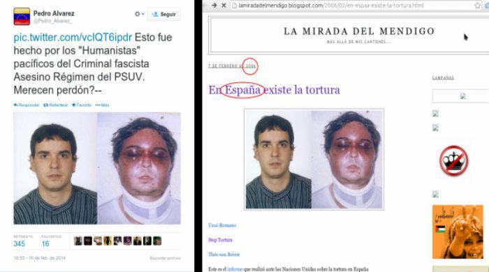 """Ein besonders perfides Beispiel: Dieses Bild zeigt den Basken Unai Romano, der von der spanischen Guardia Civil gefoltert wurde. Der Vorwurf in diesem """"Tweet"""": Das """"faschistische"""" und """"mörderische"""" Regime der PSUV von Nicolás Maduro habe ihn so zugerichtet"""