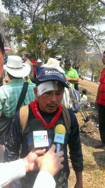 Einer der Verletzten war Francisco Sanchez vom Indigenen Rat aus Rio Blanco