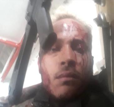 Der Attentäter kurz vor seinem Tod, von den Angriffen der Polizei gezeichnet