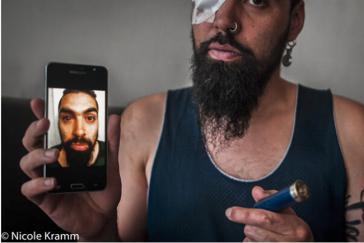 Bei Einsätzen der Carabineros gegen Protestierende erlitten nach offiziellen Angaben 400 Menschen irreparable Augenverletzungen